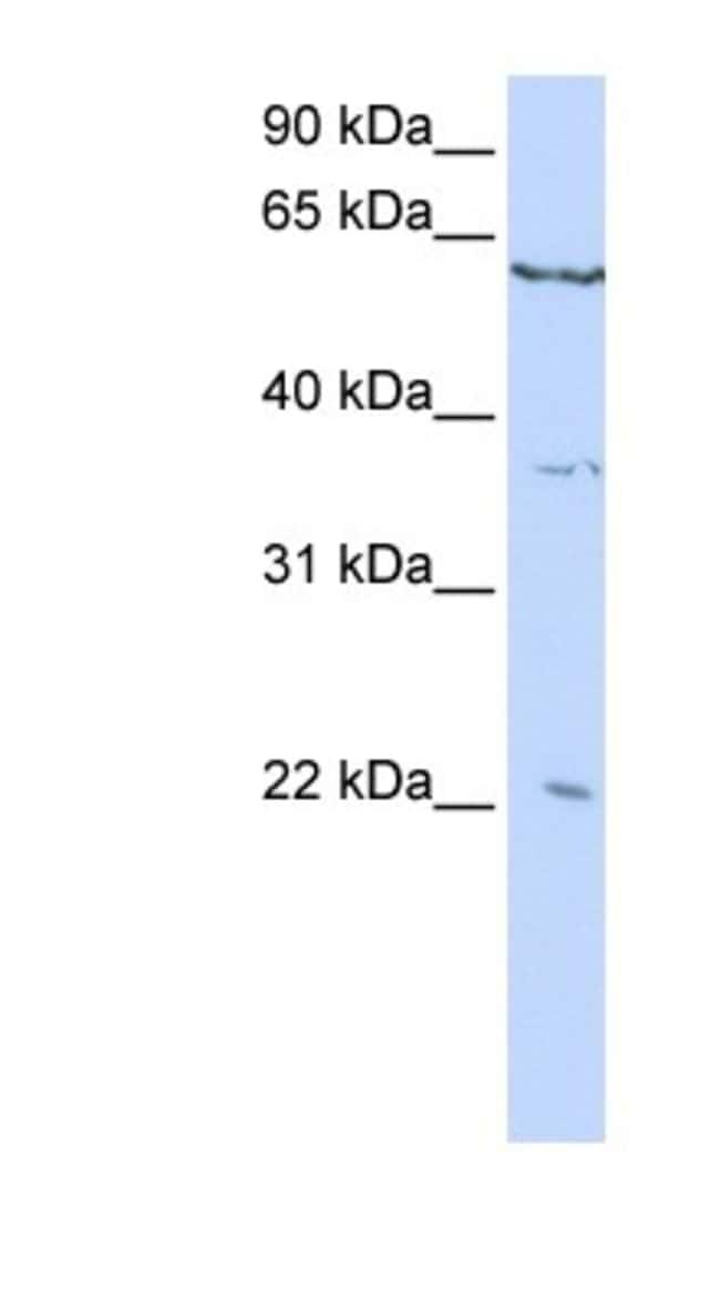 CSRP2 Rabbit anti-Human, Polyclonal, Novus Biologicals 100µL; Unlabeled:Life
