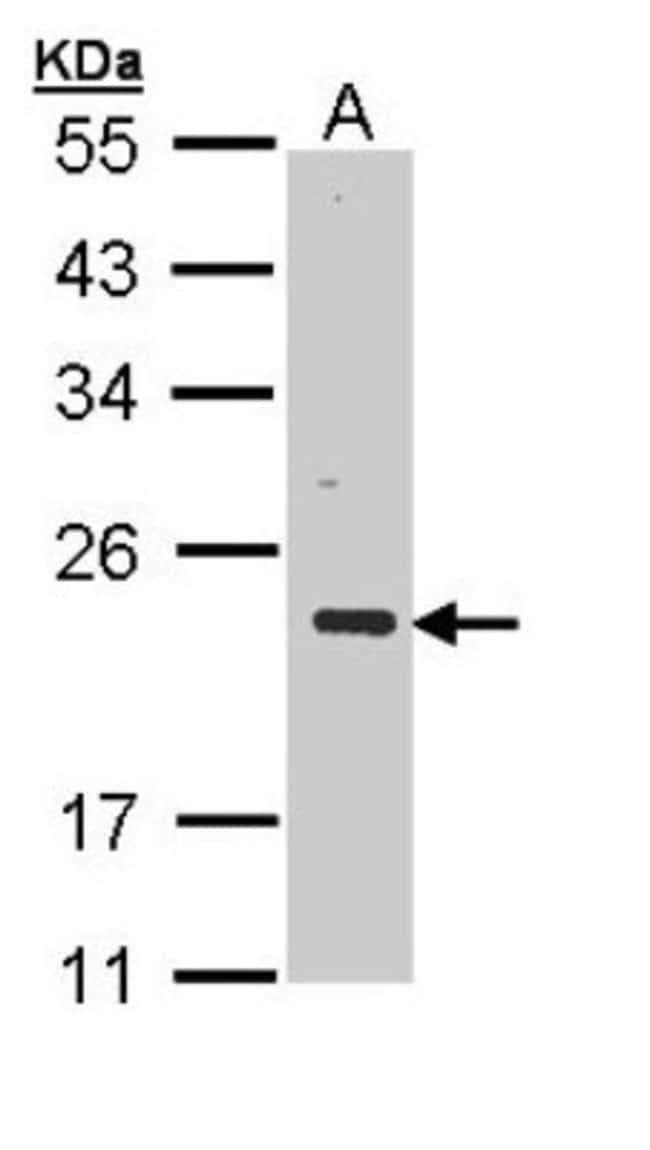 anti-CSRP3, Polyclonal, Novus Biologicals 0.1mL; Unlabeled:Antibodies