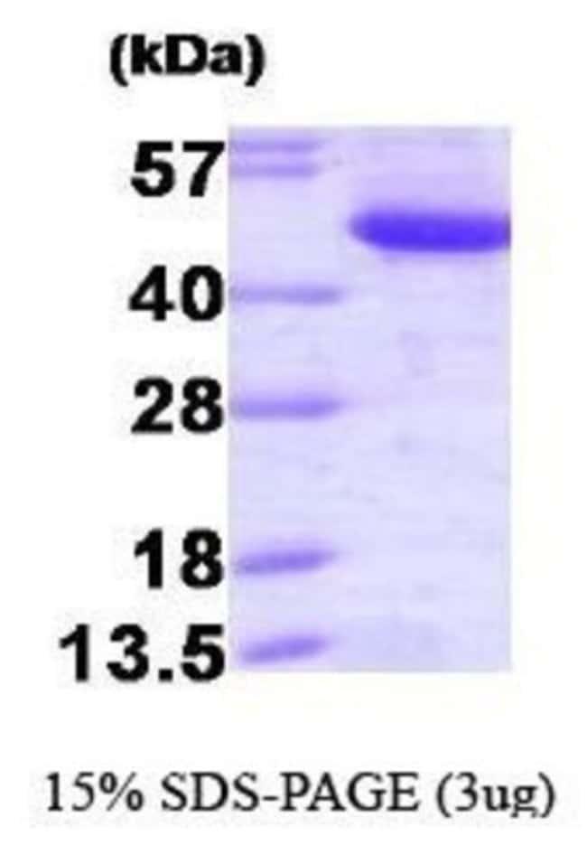 Novus Biologicals Human CtBP1 Recombinant Protein 0.1mg:Life Sciences