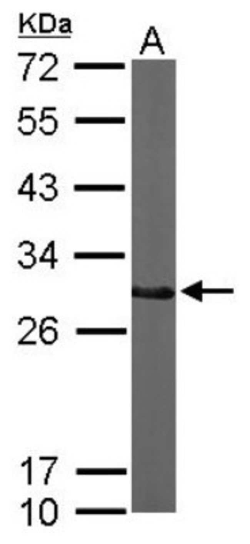 anti-CTDSP2, Polyclonal, Novus Biologicals 0.1mL; Unlabeled:Life Sciences