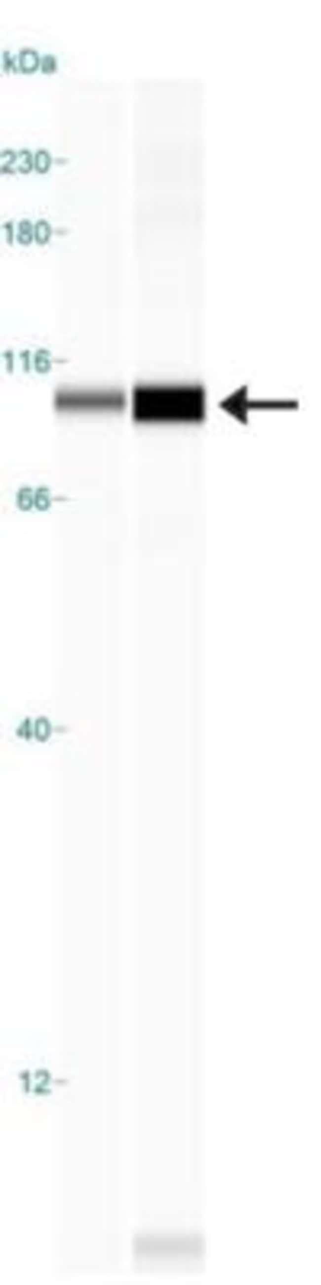 anti-CTR2, Polyclonal, Novus Biologicals:Antibodies:Primary Antibodies