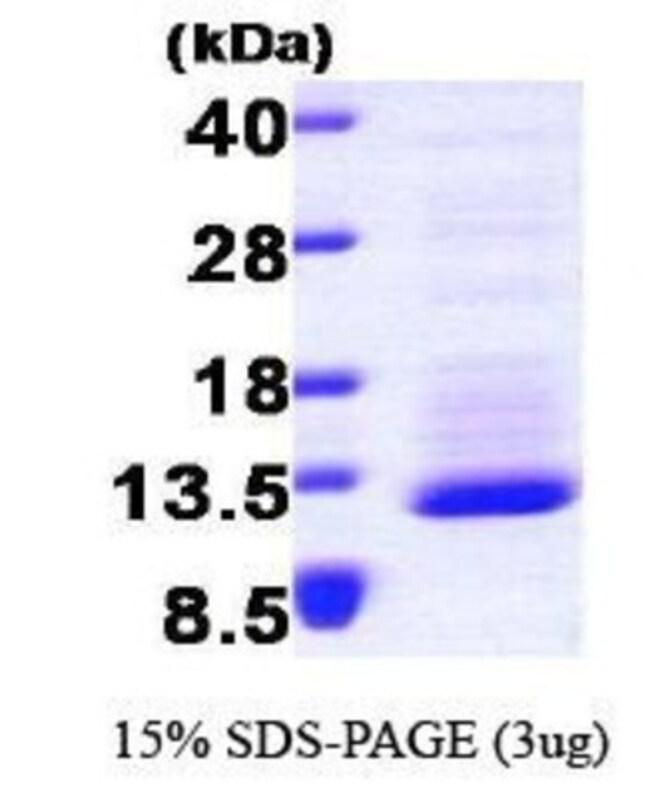 Novus Biologicals Human CX3CL1/Fractalkine Protein 0.1mg; Unlabeled:Life