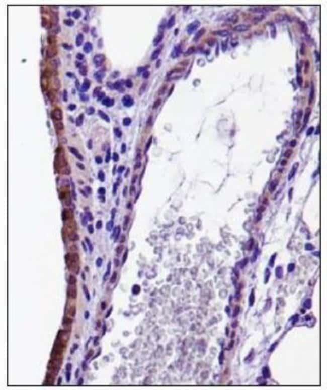 anti-CX3CL1/Fractalkine, Polyclonal, Novus Biologicals:Antibodies:Primary