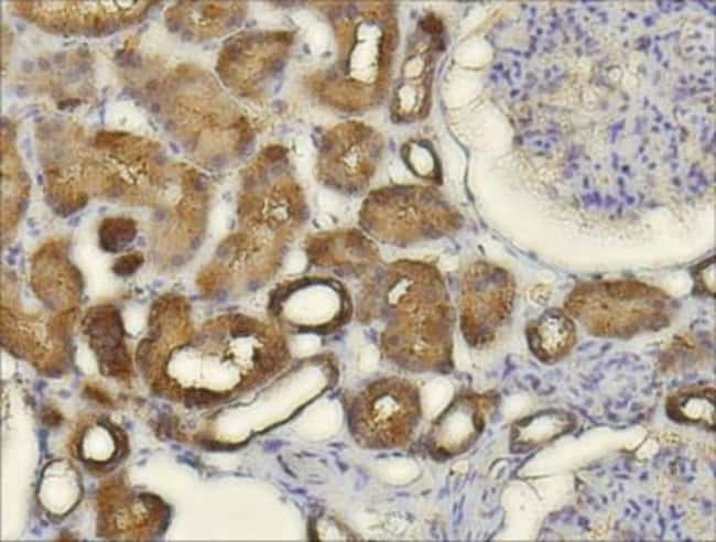 anti-CXCL14/BRAK, Polyclonal, Novus Biologicals 0.1mL; Unlabeled:Antibodies