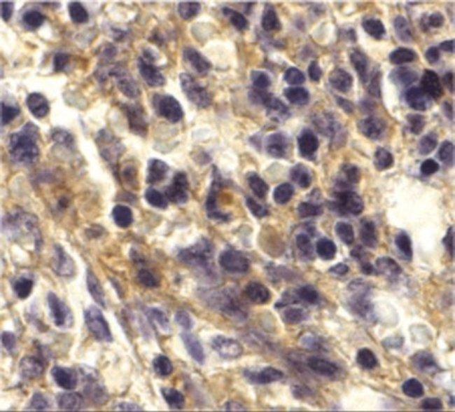anti-CXCR6, Polyclonal, Novus Biologicals 0.1mg; Unlabeled:Life Sciences