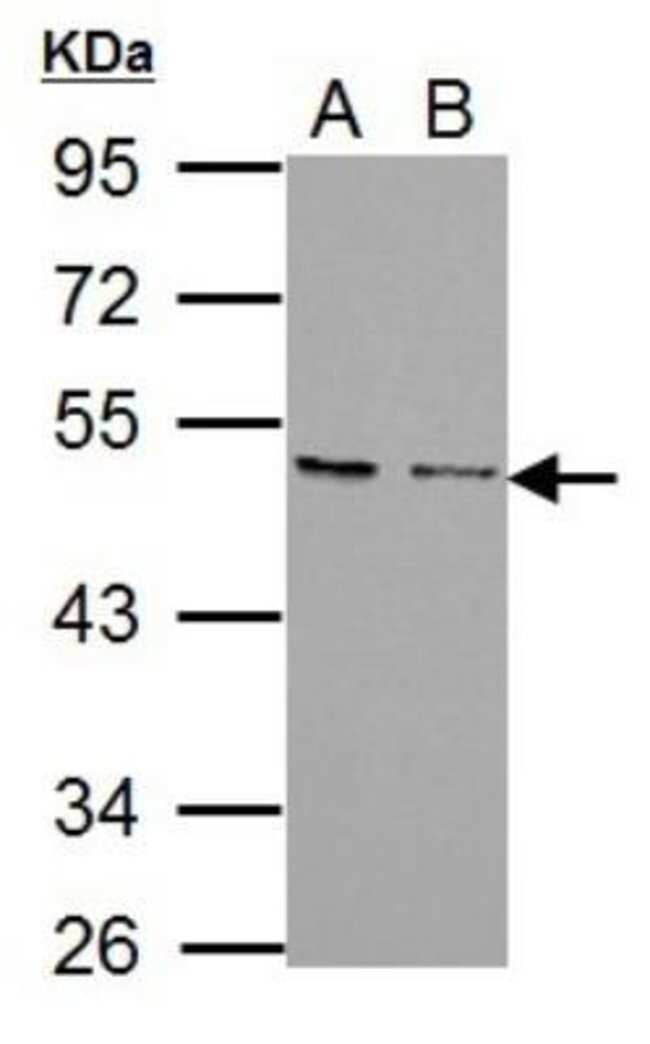 anti-CXCR7/RDC-1, Polyclonal, Novus Biologicals 0.1mg; Unlabeled:Life Sciences