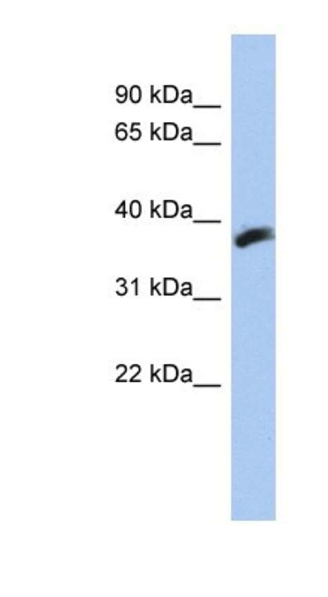 CYB5RL Rabbit anti-Human, Polyclonal, Novus Biologicals 20µL; Unlabeled