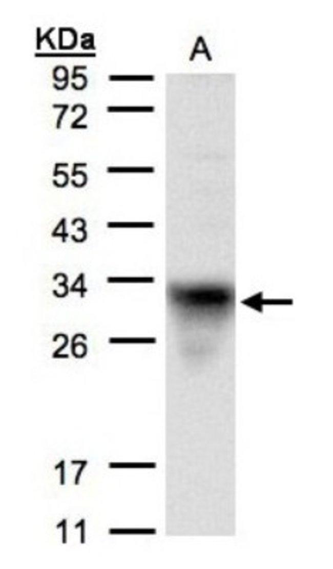 anti-CYC1, Polyclonal, Novus Biologicals 0.1mL; Unlabeled:Antibodies