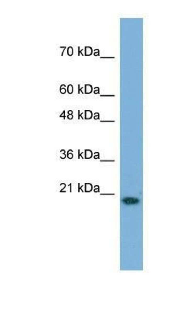 Cyclophilin A Mouse anti-Human, Clone: 9G9, Novus Biologicals 20µL;