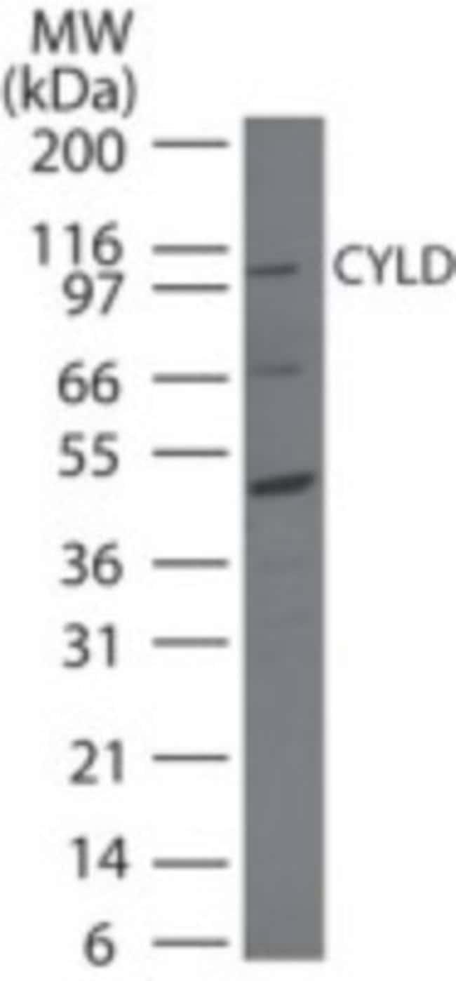 anti-CYLD, Polyclonal, Novus Biologicals:Antibodies:Primary Antibodies
