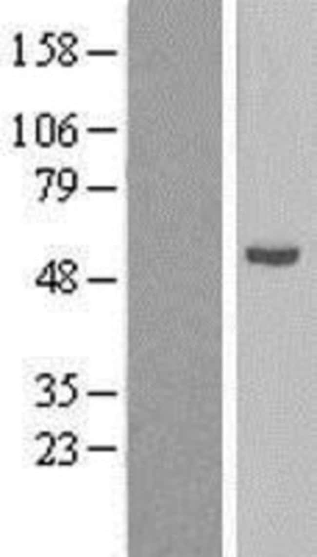 Novus Biologicals CYP21A2 Overexpression Lysate (Native) 0.1mg:Life Sciences