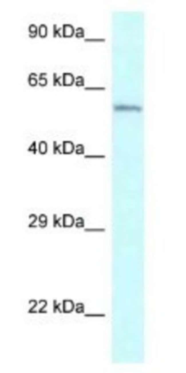 CYP2U1 Rabbit anti-Human, Polyclonal, Novus Biologicals 100µL; Unlabeled:Life