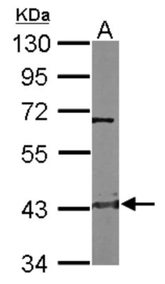 anti-Cystathionase, Polyclonal, Novus Biologicals 0.1mg; Unlabeled:Antibodies