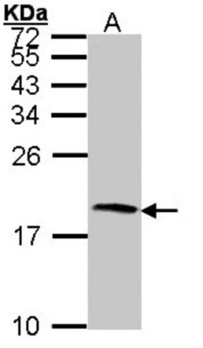 anti-Cystatin S, Polyclonal, Novus Biologicals 0.1mg; Unlabeled:Life Sciences