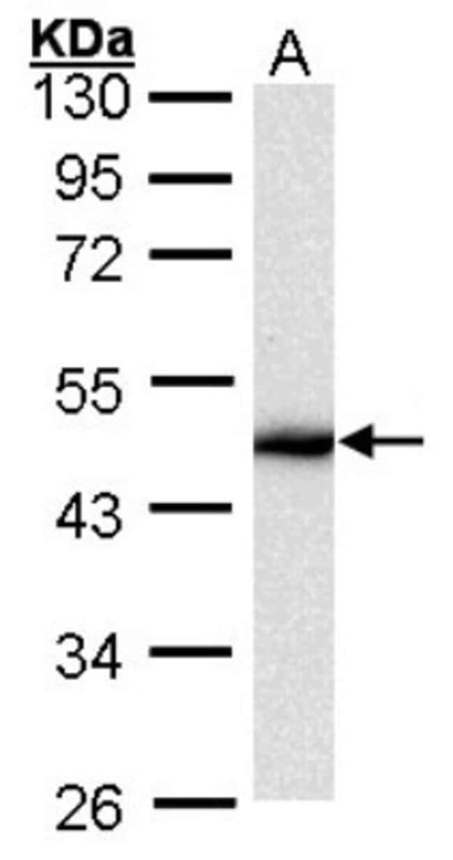 anti-Cytokeratin 16, Polyclonal, Novus Biologicals 0.1mL; Unlabeled:Antibodies