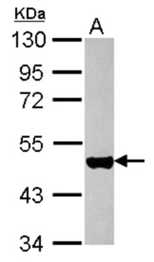 anti-Cytokeratin 17, Polyclonal, Novus Biologicals 0.1mL; Unlabeled:Antibodies