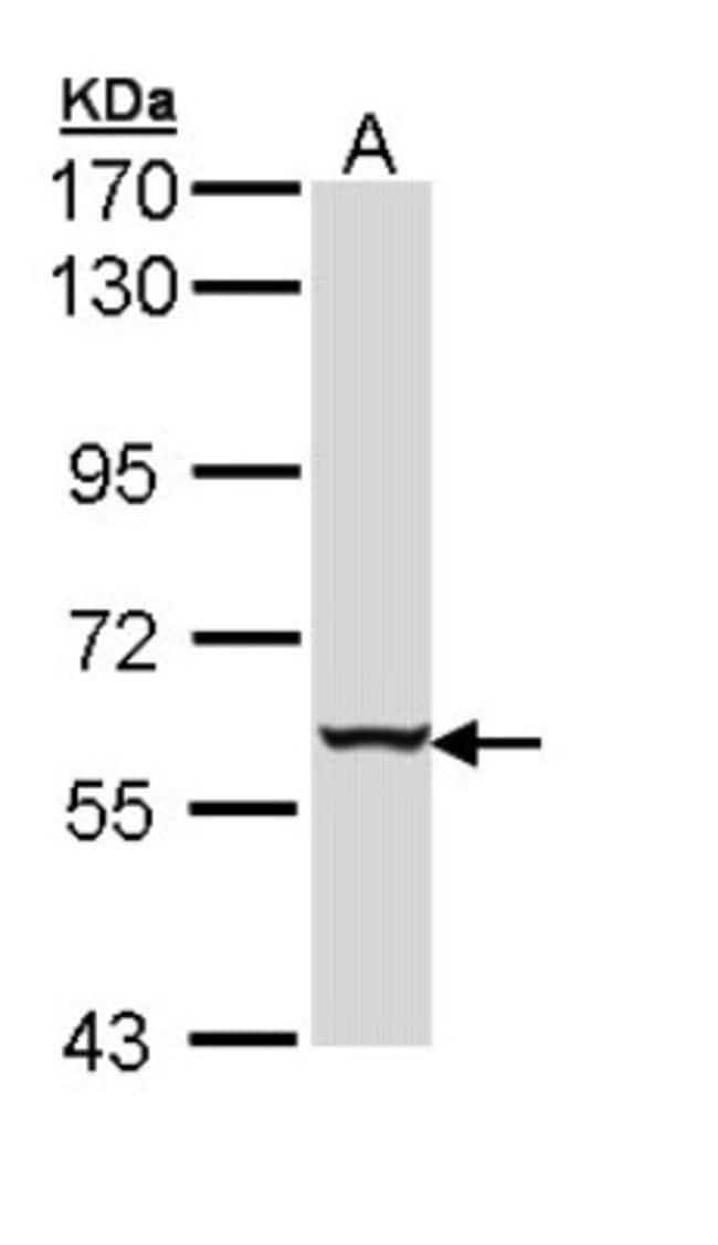 anti-Cytokeratin 4, Polyclonal, Novus Biologicals 0.1mg; Unlabeled:Antibodies