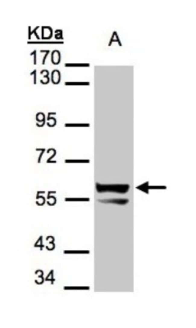 anti-Cytokeratin 6a, Polyclonal, Novus Biologicals 0.1mL; Unlabeled:Life