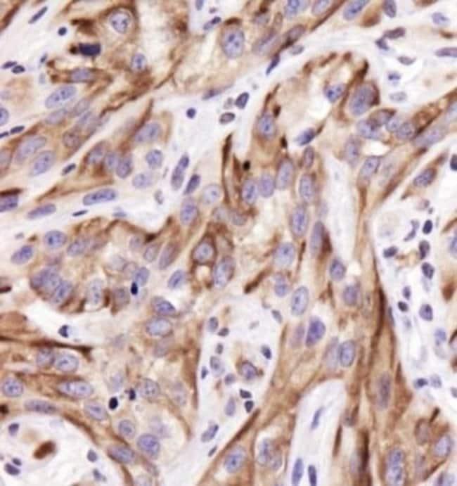 anti-Cytokeratin 19, Polyclonal, Novus Biologicals:Antibodies:Primary Antibodies
