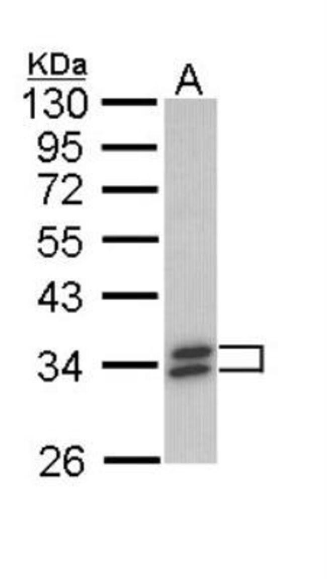 anti-Cytosolic Sulfotransferase 1A1/SULT1A1, Polyclonal, Novus Biologicals