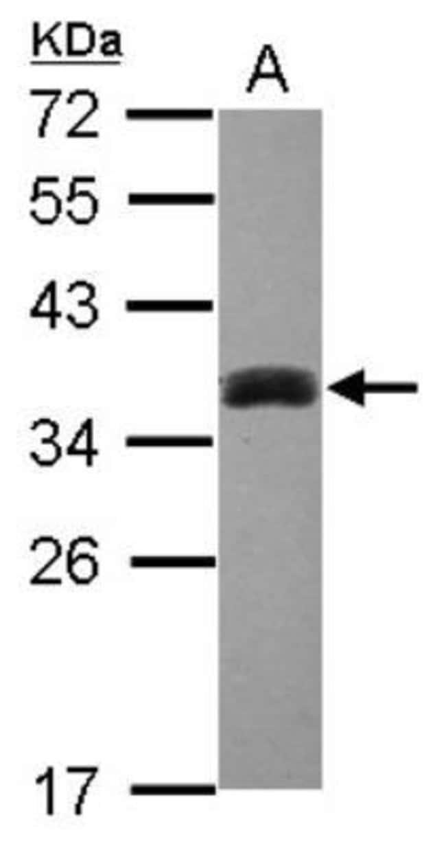anti-Cytosolic Sulfotransferase 1A3/SULT1A3/CSPS, Polyclonal, Novus Biologicals