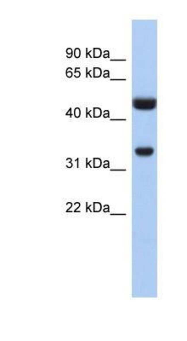 Cytosolic Sulfotransferase 1B1/SULT1B1 Rabbit anti-Human, Polyclonal, Novus