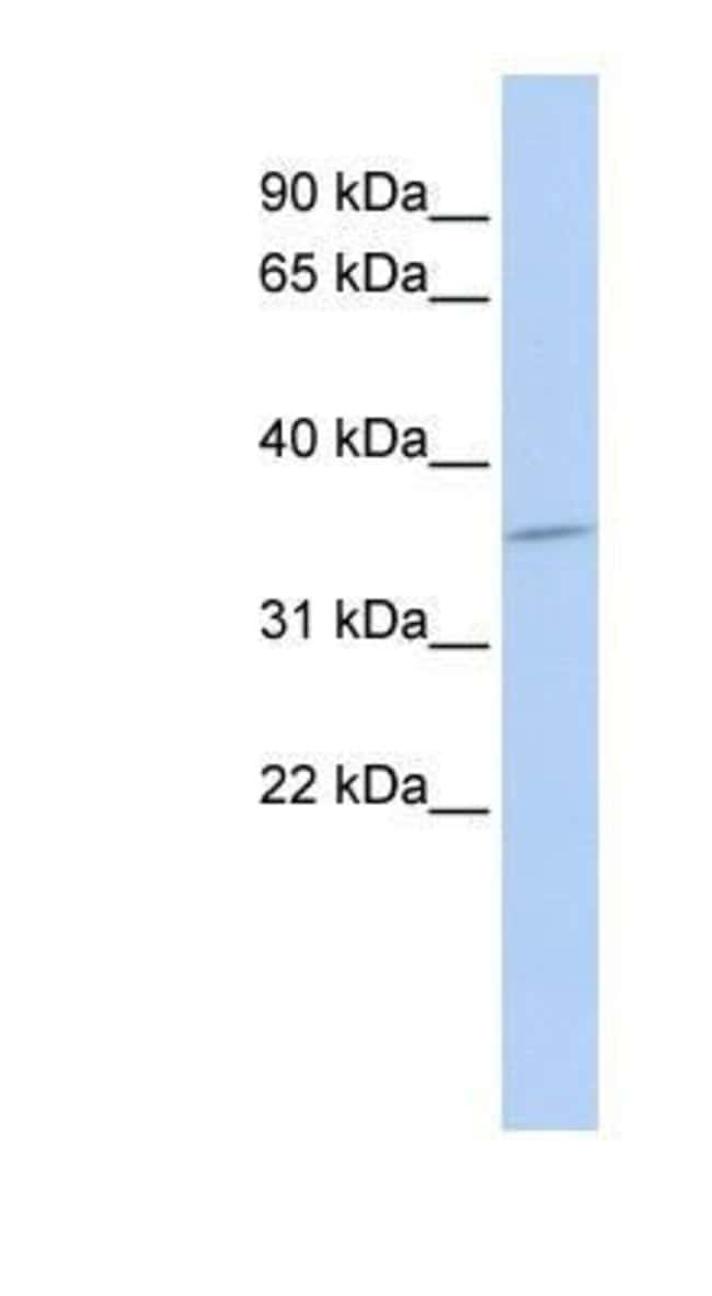 Cytosolic Sulfotransferase 1C4/SULT1C4 Rabbit anti-Human, Polyclonal, Novus