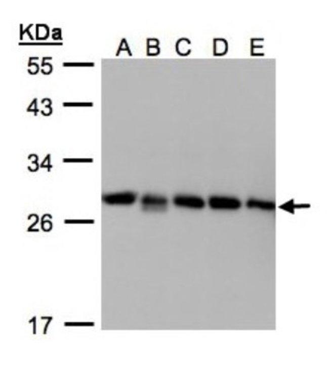 anti-D4-GDI/RhoGDI2, Polyclonal, Novus Biologicals 0.1mg; Unlabeled:Life