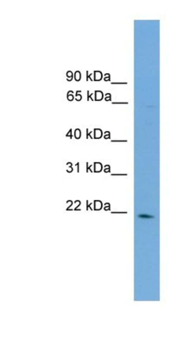 D4S234E Rabbit anti-Human, Polyclonal, Novus Biologicals 100µL; Unlabeled:Life