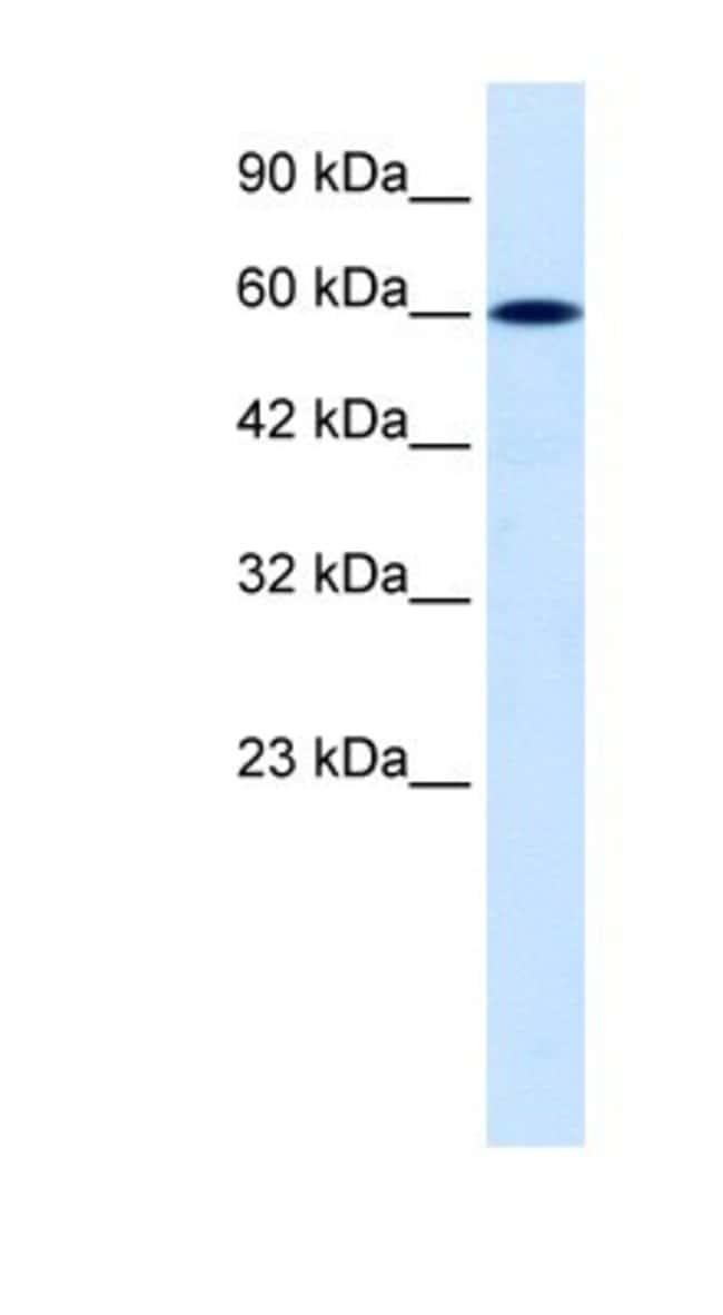 DACH2 Rabbit anti-Human, Polyclonal, Novus Biologicals 100µL; Unlabeled:Life