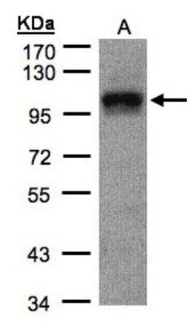 anti-DAP5, Polyclonal, Novus Biologicals 0.1mg; Unlabeled:Life Sciences