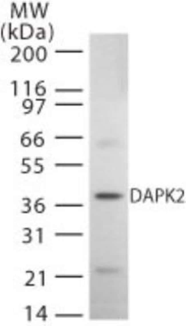 anti-DAP Kinase 2, Polyclonal, Novus Biologicals:Antibodies:Primary Antibodies