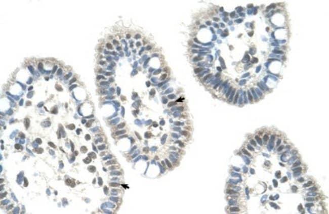 anti-DAX1/NR0B1, Polyclonal, Novus Biologicals 0.1mg; Unlabeled:Life Sciences