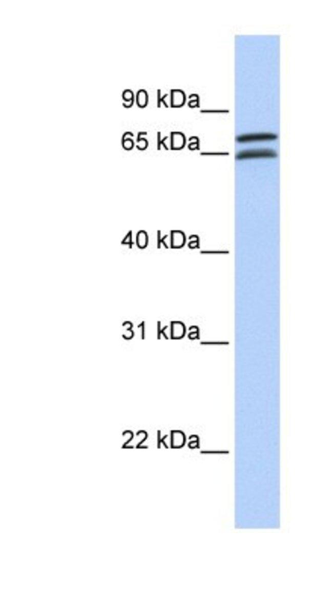 DCP1B Rabbit anti-Human, Polyclonal, Novus Biologicals 20µL; Unlabeled