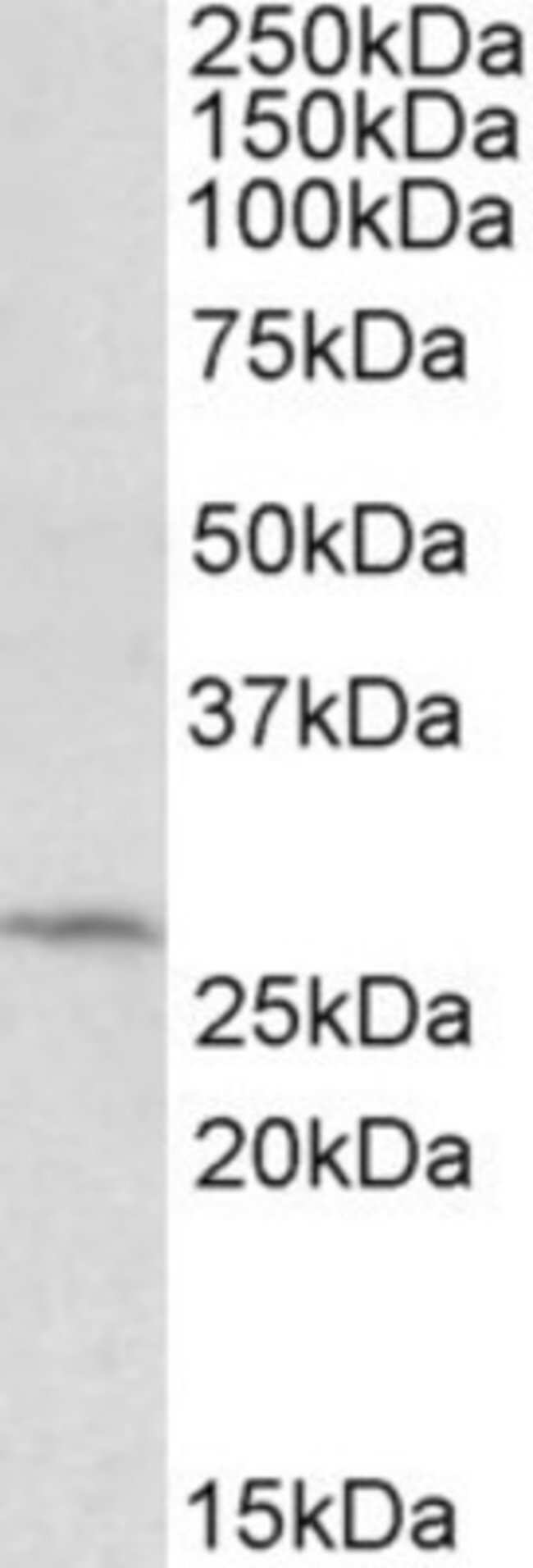 anti-DCUN1D1, Polyclonal, Novus Biologicals 0.1mg; Unlabeled:Life Sciences