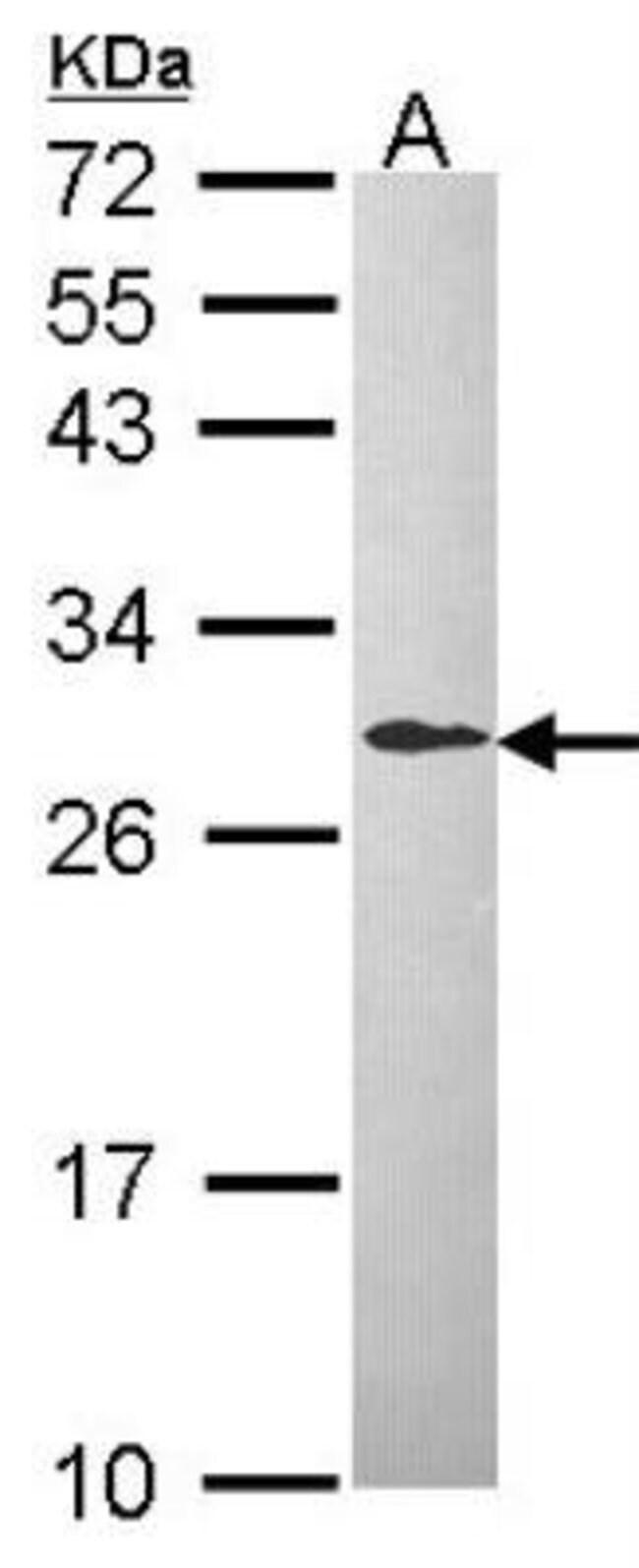 anti-DCXR, Polyclonal, Novus Biologicals 0.1mg; Unlabeled:Life Sciences