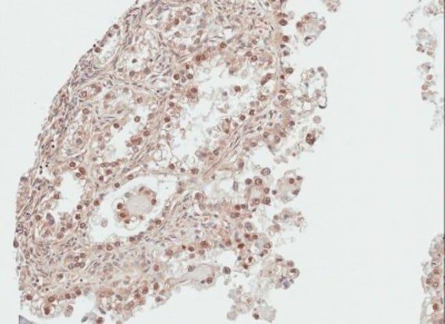 anti-DDI1, Polyclonal, Novus Biologicals 0.1mg; Unlabeled:Antibodies