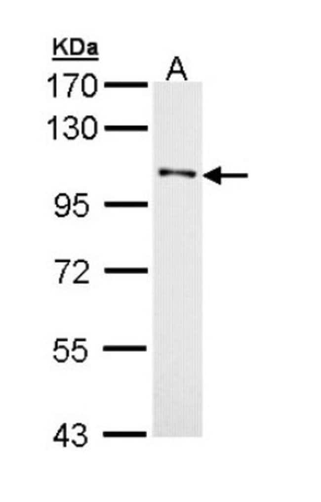 anti-DDR1, Polyclonal, Novus Biologicals 0.1mg; Unlabeled:Life Sciences