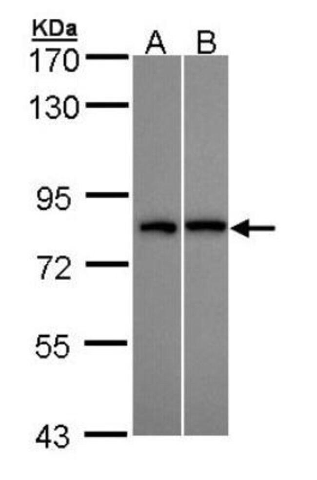 anti-DDX3Y, Polyclonal, Novus Biologicals 0.1mL; Unlabeled:Life Sciences
