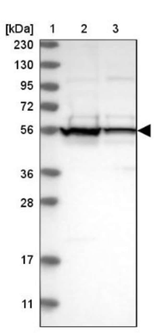 anti-DDX6, Polyclonal, Novus Biologicals 0.1mL; Unlabeled:Life Sciences