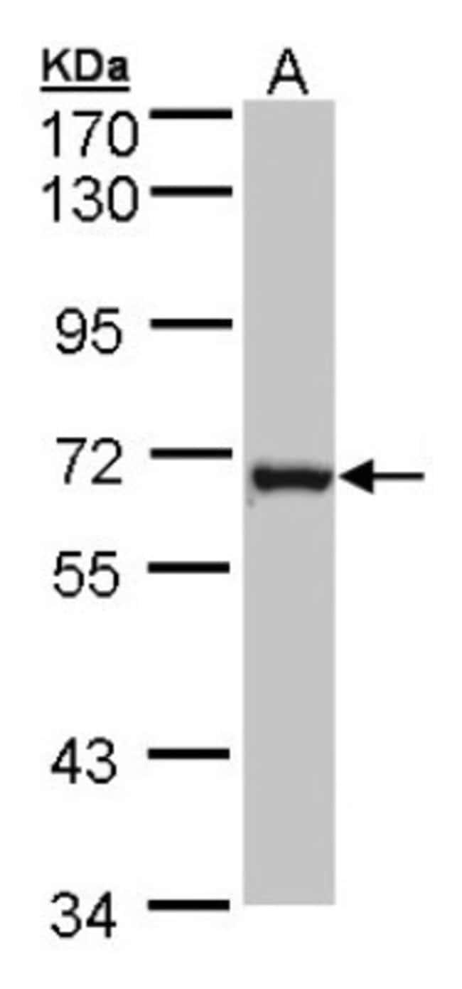 anti-DENND1B, Polyclonal, Novus Biologicals 0.1mL; Unlabeled:Antibodies