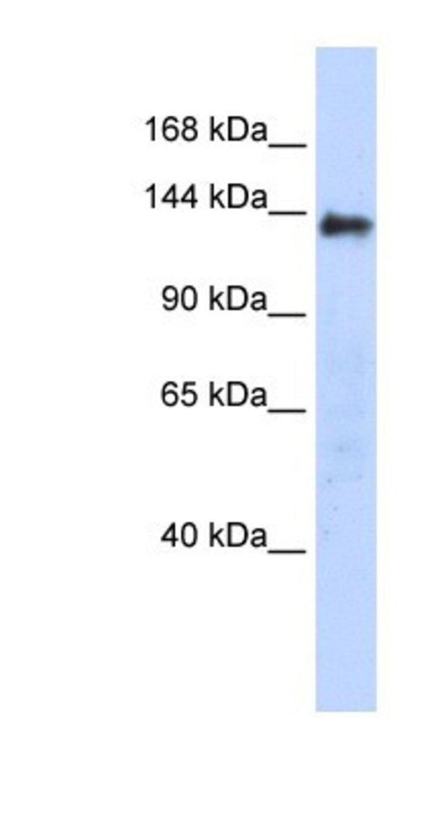 DENND2C Rabbit anti-Human, Polyclonal, Novus Biologicals 20µL; Unlabeled