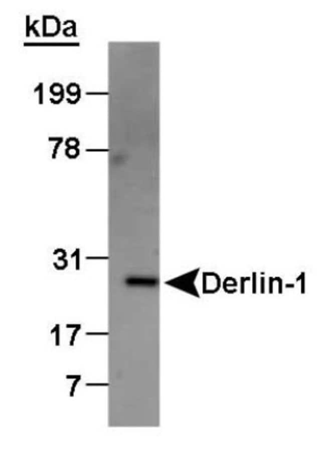 anti-Derlin 1, Polyclonal, Novus Biologicals:Antibodies:Primary Antibodies