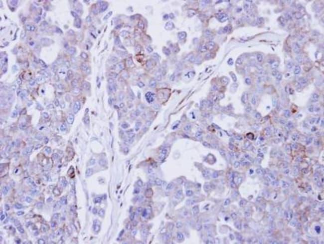 anti-Desmocollin-2, Polyclonal, Novus Biologicals 0.1mg; Unlabeled:Antibodies
