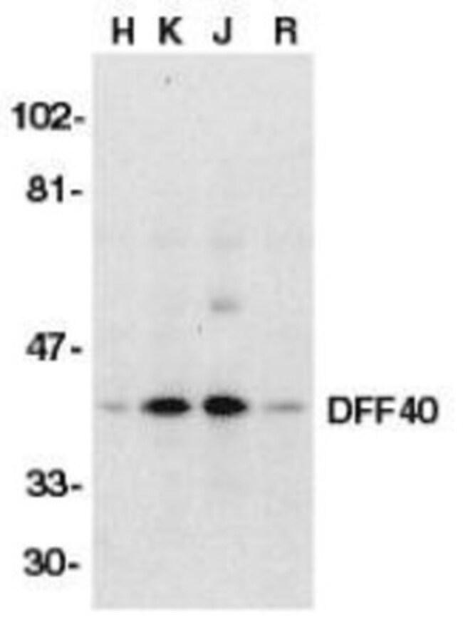 anti-DFF40/CAD, Polyclonal, Novus Biologicals 0.1mg; Unlabeled:Life Sciences