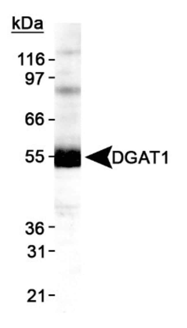DGAT1 Rabbit anti-Human, Mouse, Polyclonal, Novus Biologicals:Antibodies:Primary