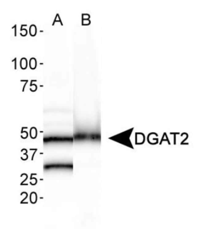 DGAT2 Rabbit anti-Human, Mouse, Rat, Polyclonal, Novus Biologicals:Antibodies:Primary
