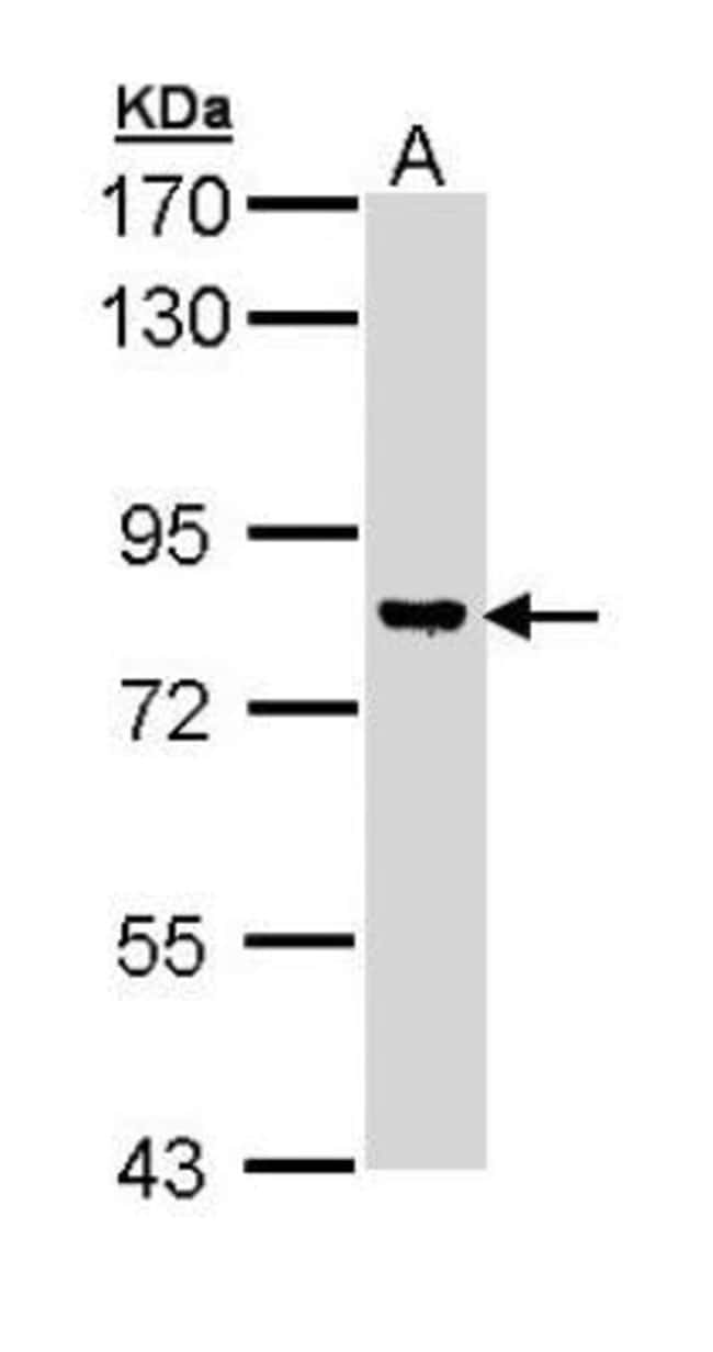 anti-DGK-gamma, Polyclonal, Novus Biologicals 0.1mL; Unlabeled:Antibodies