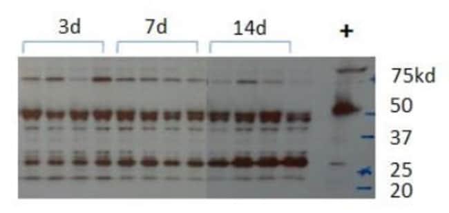 anti-DIO3, Polyclonal, Novus Biologicals:Antibodies:Primary Antibodies
