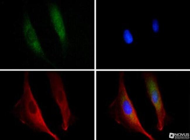 anti-DISC1, Polyclonal, Novus Biologicals:Antibodies:Primary Antibodies